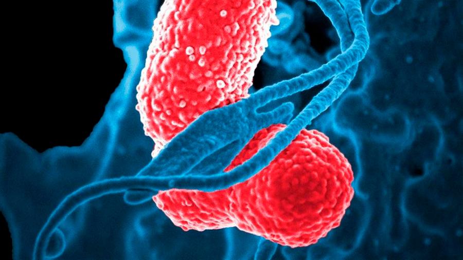 Logran cuantificar el mecanismo por el cual los linfocitos distinguen entre células enfermas y sanas