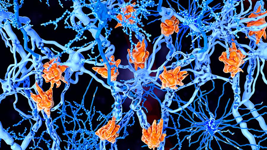 España prueba el primer fármaco oral que reduce la esclerosis múltiple durante 48 semanas
