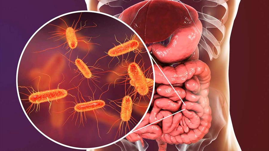 Bacterias estresadas pueden desencadenar una respuesta autoinmune