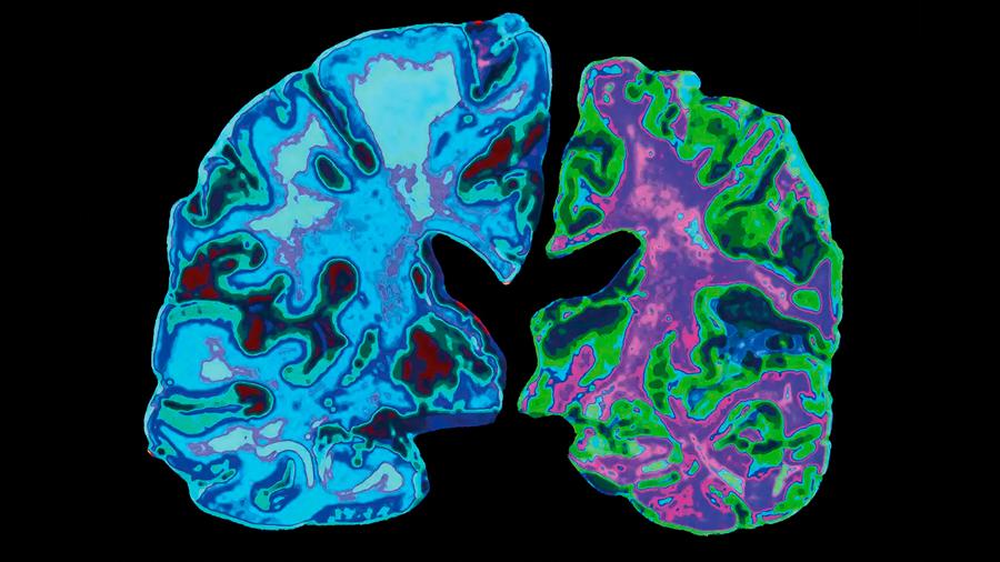 Cambios cerebrales vinculados al Alzheimer pueden aparecer hasta 30 años antes que los síntomas