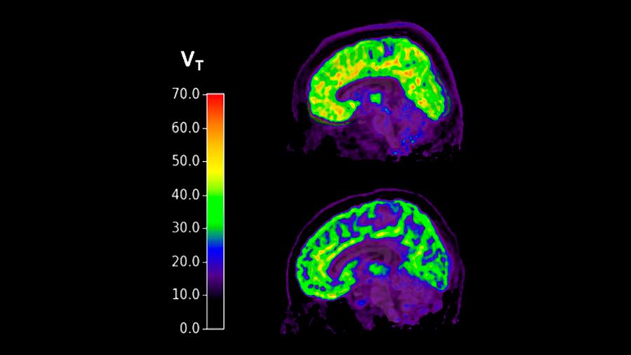 Descubren un biomarcador en el cerebro relacionado con el suicidio