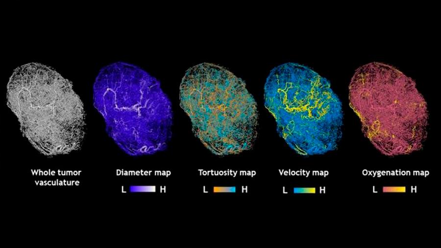 Crean el primer Google Maps de un tumor