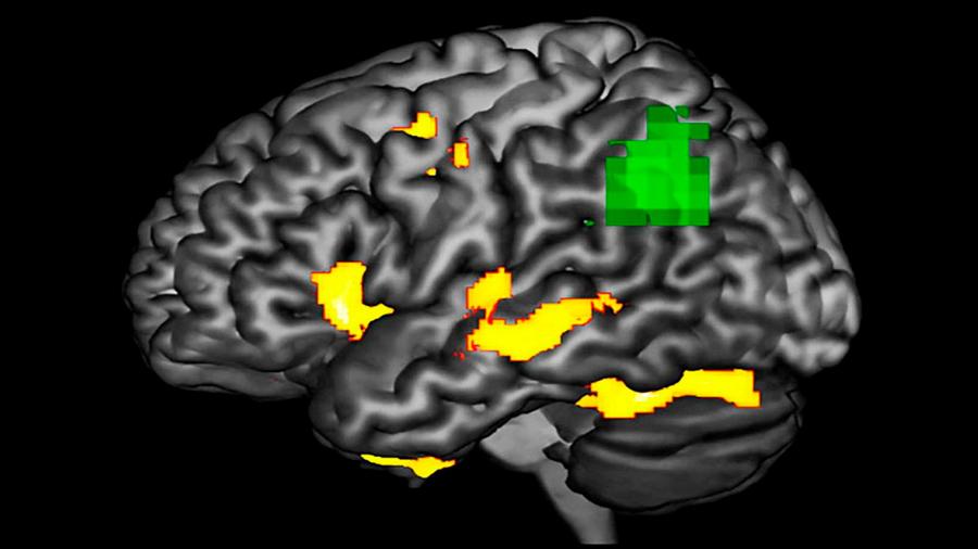 Un biomarcador no invasivo podría detectar el Parkinson