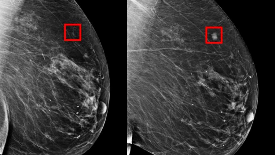 MIT crea IA que predice hasta con cinco años el cáncer de mama