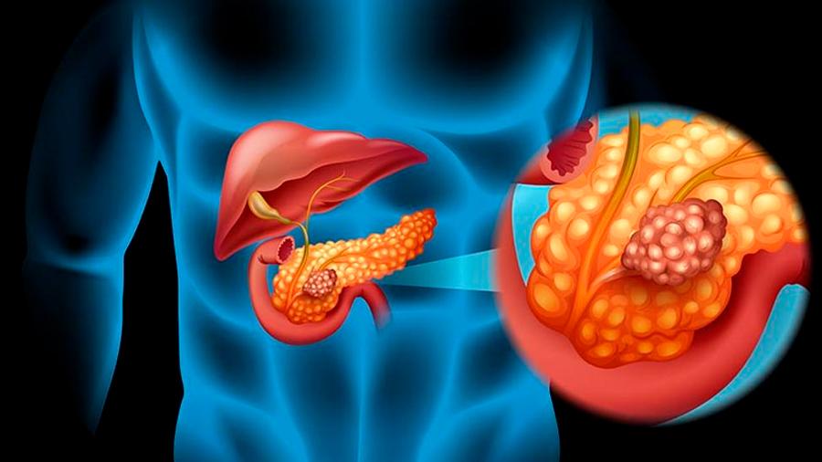 Consiguen predecir qué quistes pancreáticos pueden volverse cancerosos