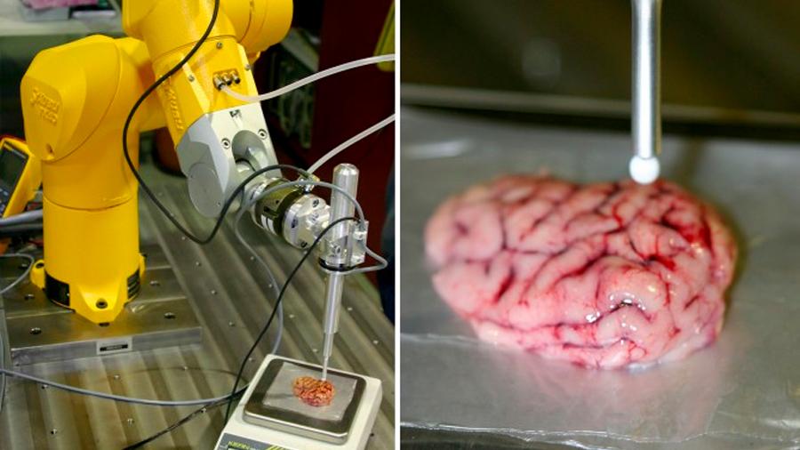 Crea investigador mexicano un bisturí inteligente que detecta tumores cerebrales
