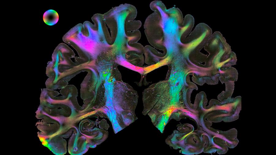 Combinación de neurociencia y computación, el Human Brain Project revela los secretos del encéfalo