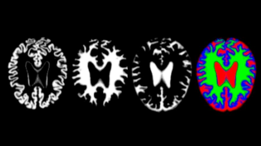 Identifican un nuevo biomarcador clave para detectar precozmente el alzhéimer