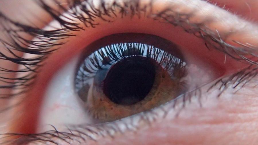 Por qué es tan difícil saber si tienes glaucoma, el principal causante de ceguera irreversible en el mundo