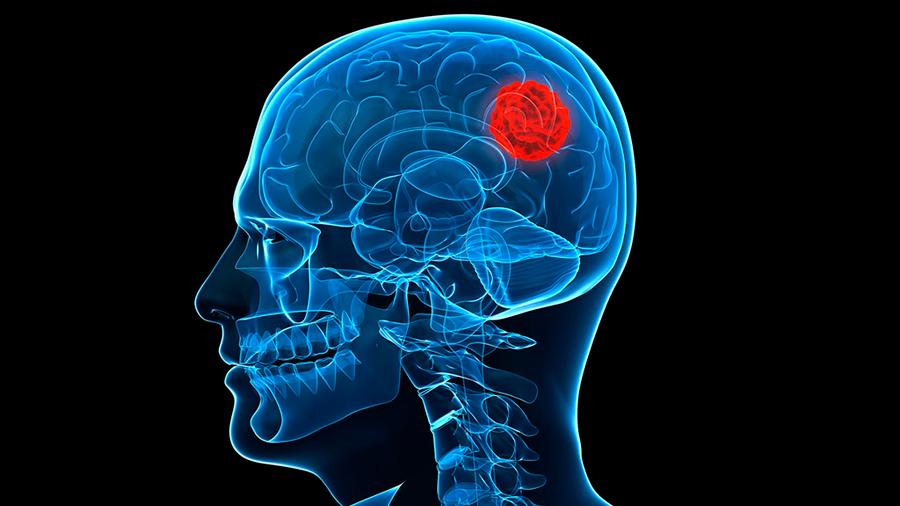 Una 'nariz artificial' identifica tejido maligno en los tumores cerebrales durante la cirugía