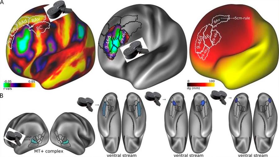 Un algoritmo predice el 100% de los pacientes con depresión que responderán a un tratamiento con electroshock