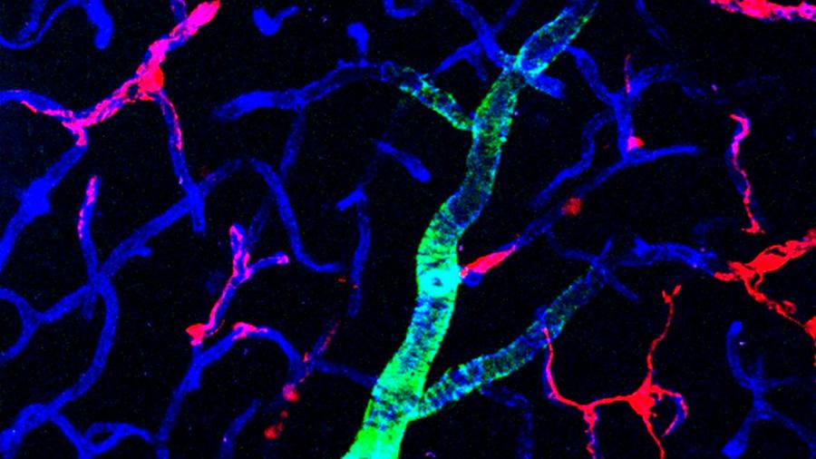 Observan una sustancia en el cerebro que protege las neuronas de la demencia