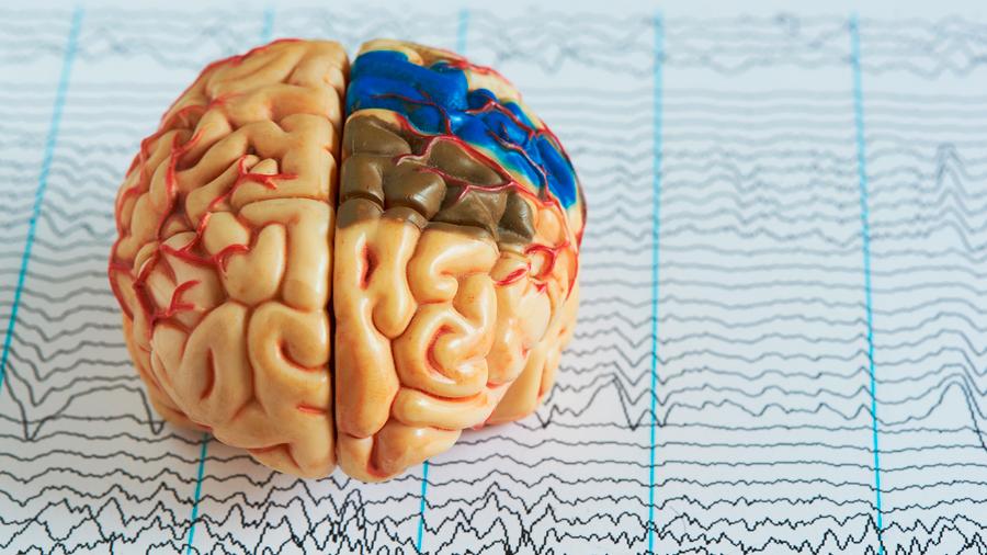 La IA puede detectar la consciencia oculta