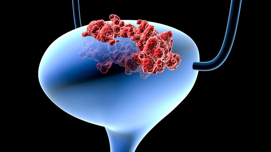 Un nuevo tratamiento logra eliminar el cáncer de vejiga en ratones