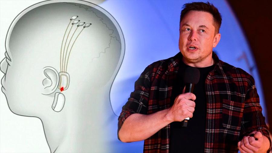 Elon Musk finalmente presenta Neuralink, su startup que conectará las computadoras al cerebro