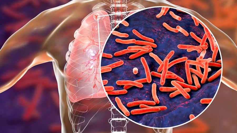 Publica Sciense colaboración de investigador mexicano en proyecto contra tuberculosis