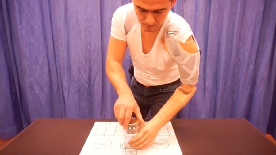 Amputados controlan con sorprendente habilidad su mano protésica gracias a sensores invasivos