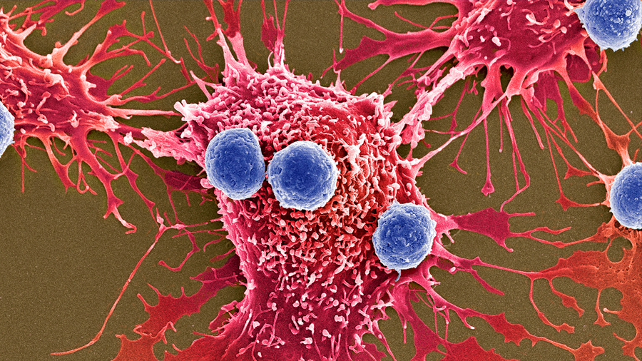 Nuevas armas contra el cáncer: millones de bacterias programadas para matar