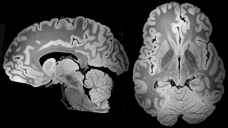 Logran visualizar el cerebro a detalle más completo tras una resonancia magnética de 100 horas