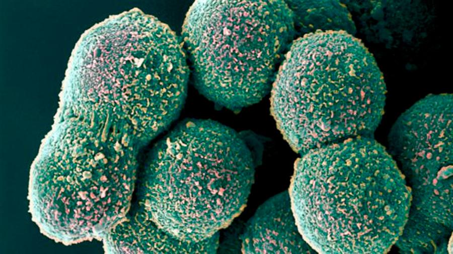 Localizan células que ayudarían a evitar los trasplantes de hígado