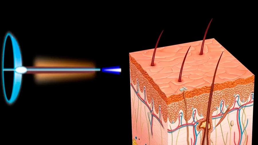 Científicos mexicanos desarrollan prototipo de inyección sin agujas