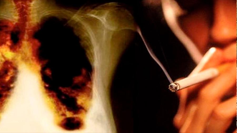 Enfisema pulmonar: la contaminación perjudica como un paquete de tabaco al día