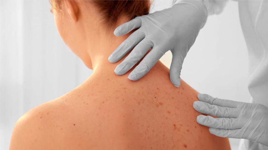 Investigadores descubren el mecanismo por el que la radiación ultravioleta daña la piel