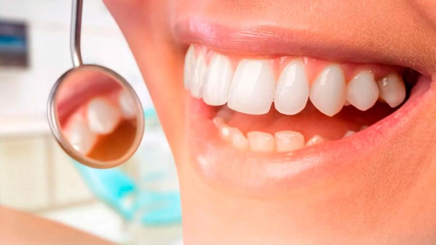 China: científicos aseguran haber creado gel que repara el esmalte perdido en los dientes