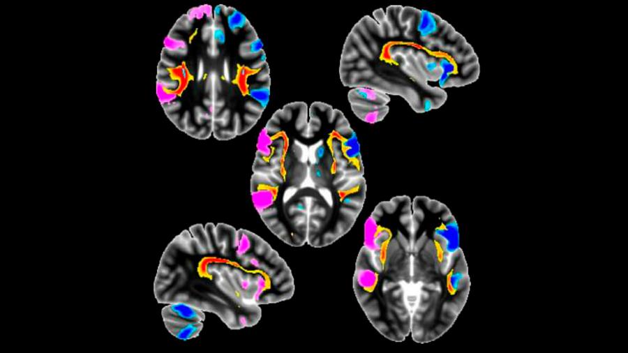 Los zurdos tendrían estructuras cerebrales y genéticas distintas a las de los diestros