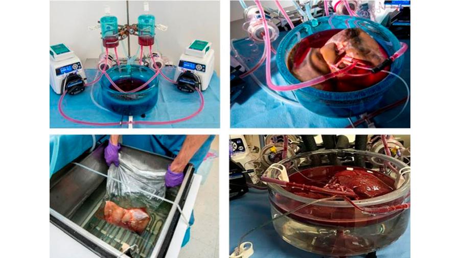 Logran alargar la preservación de hígados para trasplantes, hasta por 27 horas