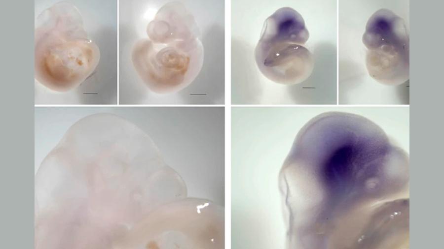 El virus del Zika infecta a los embriones incluso antes de su implantación en el útero