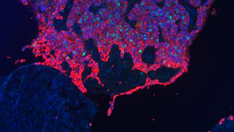 Descubren la hoja de ruta del crecimiento del cáncer