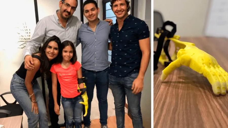 Un proyecto en México crea prótesis para niños por menos de 100 dólares