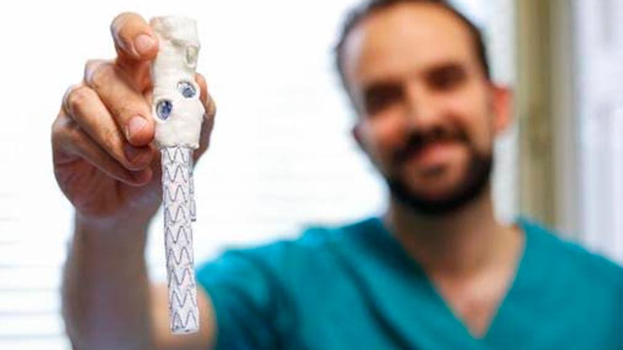 Fabrican de urgencia aorta impresa en 3D que salvó la vida a un paciente en menos de 10 horas