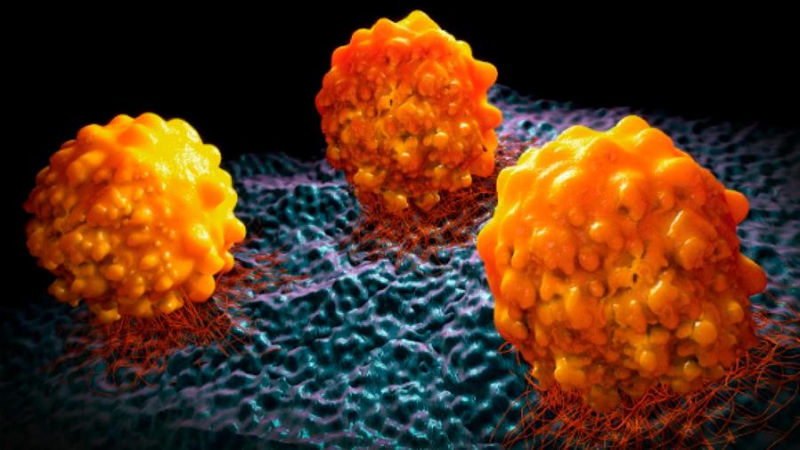Descubren cómo se alimenta el cáncer de páncreas agresivo
