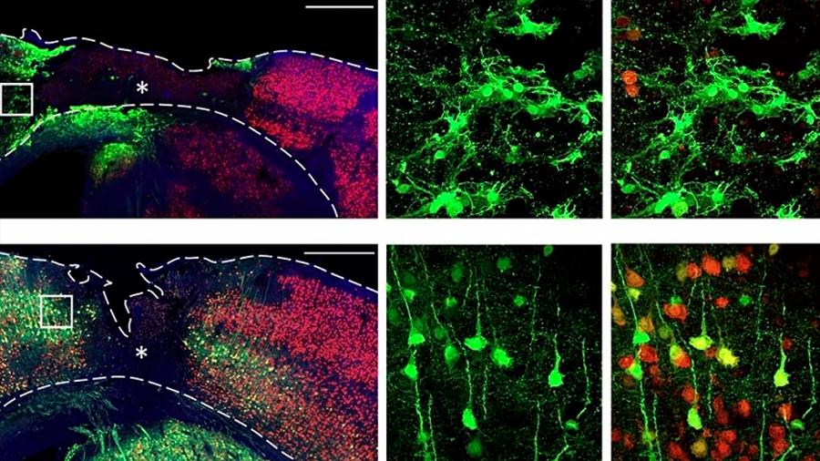 Logran con terapia génica regenerar neuronas pérdidas en accidentes cerebro vasculares