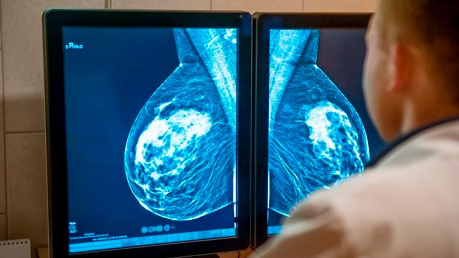 Descubren la causa de las metástasis óseas en el cáncer de mama
