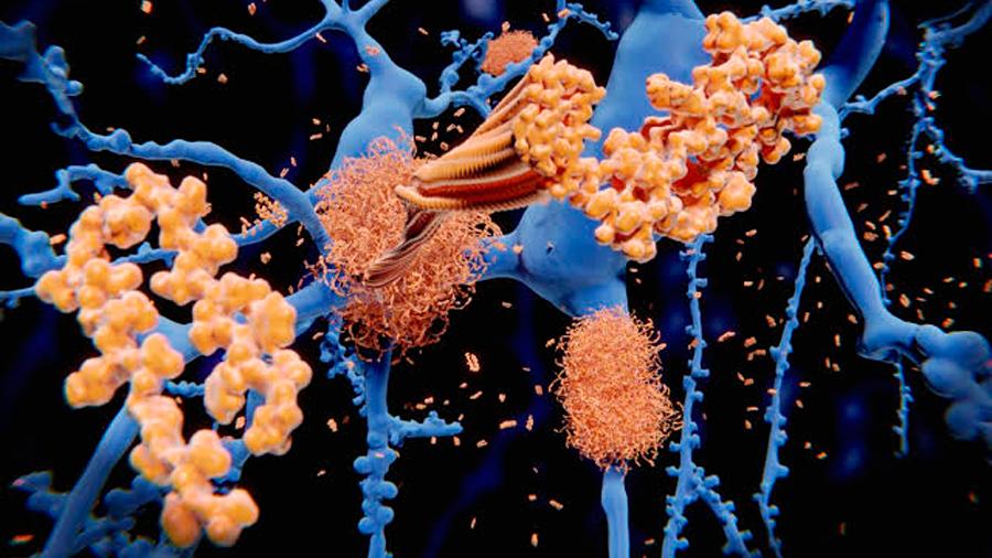 Se identifica la región del cerebro donde se empiezan a acumular las placas de amiloide en Alzheimer