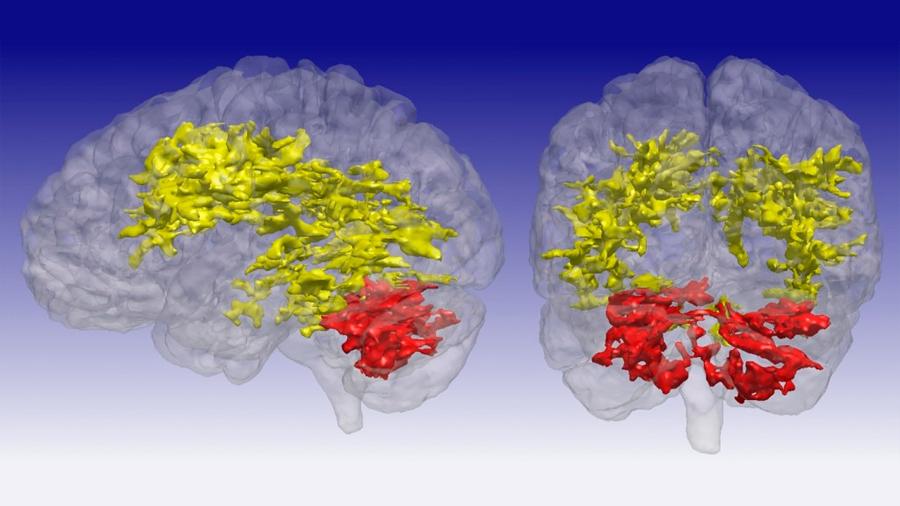 Hallan en cerebros de afectados por trastorno bipolar una serie de diferencias respecto a los de gente normal