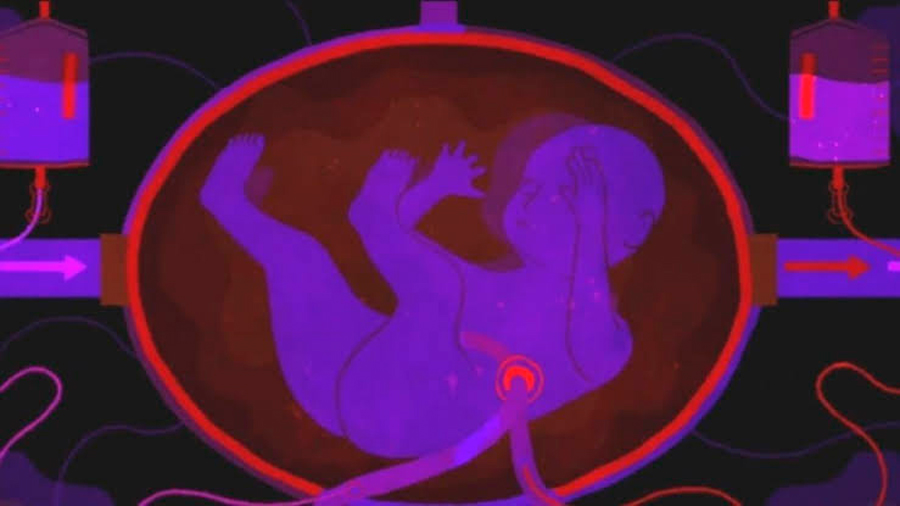 """Así es el primer útero artificial que desarrollaron en Holanda y permitirá """"renacer"""" a los bebés"""