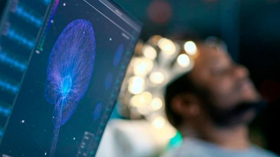 Un biomarcador para la esquizofrenia se puede detectar en el cabello humano