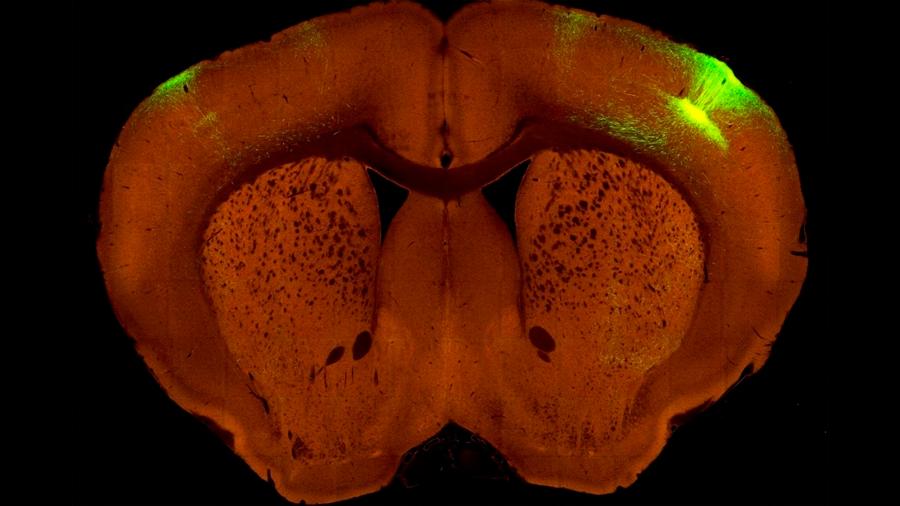 Presentan nuevo mapa de alta resolución de cómo está conectado el cerebro