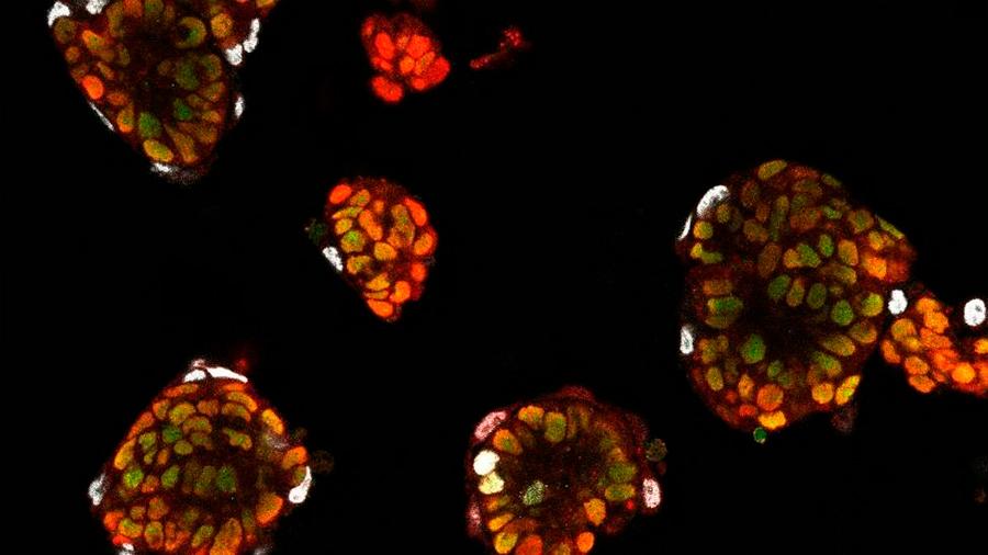 Investigadores descubren cómo las células 'saben' su futuro y 'olvidan' su pasado