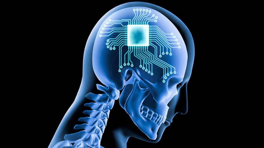 Tecnológicas buscan curar enfermedades con un chip en el cerebro