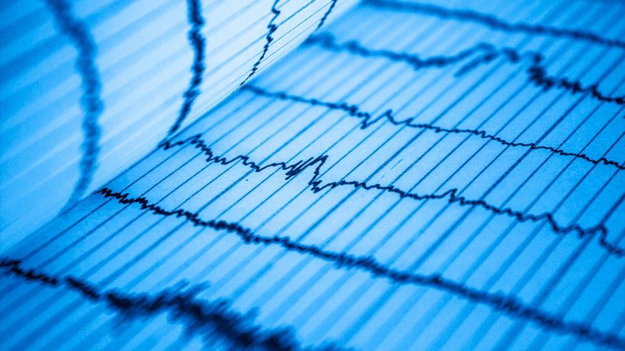 La IA puede anticipar la muerte de pacientes cardiacos
