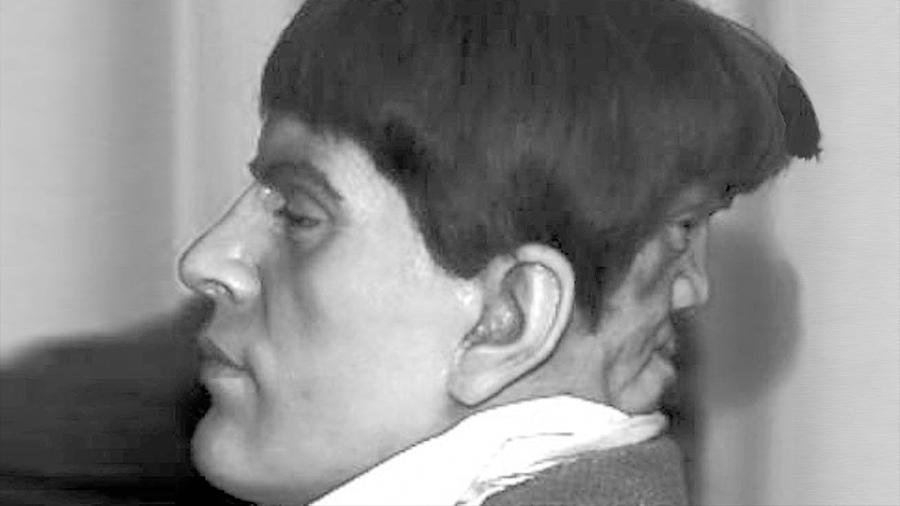 La verdadera historia de Edward Mordrake, el hombre con dos caras