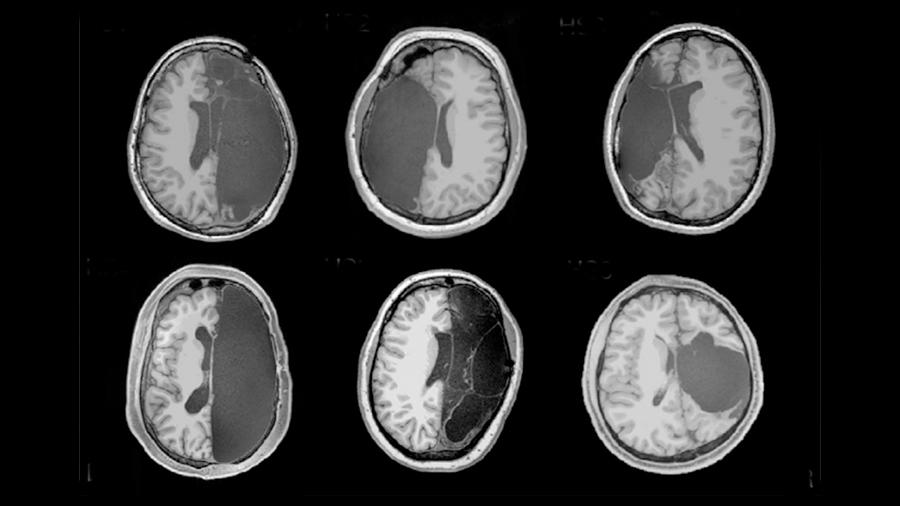 Neuroplasticidad: el cerebro puede re-organizarse incluso luego de perder todo un hemisferio