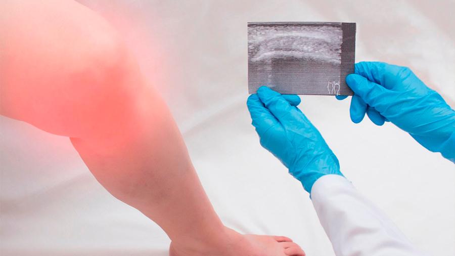 Descubren un nuevo tipo de célula que causa la atritis reumatoide
