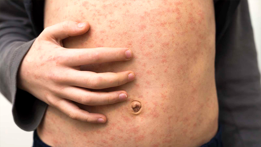 Los casos de sarampión se triplican en 2019, según la OMS