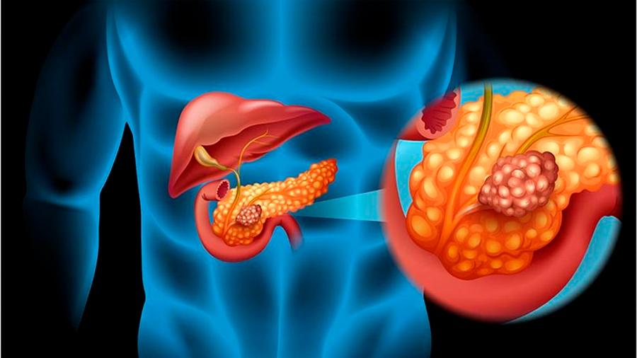 Descubren cómo se comunican entre sí las células del cáncer de páncreas